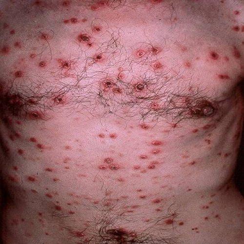 mancarimi de piele
