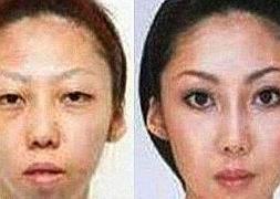 Esposa de Jian Feng, antes y despues de las cirugías plasticas.