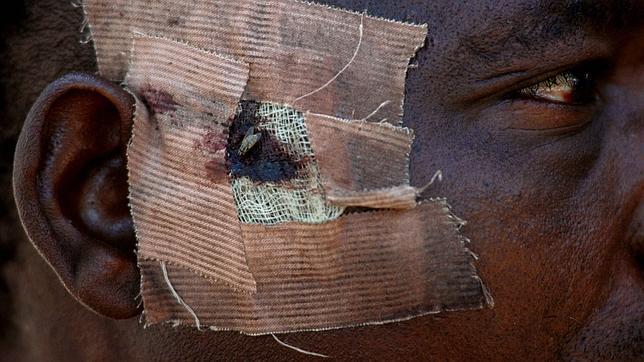 Un inmigrante subsahariano herido en el campamento del monte Gurugú (Marruecos), cerca de Melilla