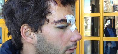 El herido, ayer, al entrar en la Comisaría Provincial. ::