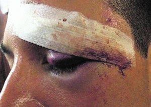 El policía que sufrió el mordisco en una ceja.