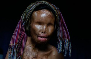 La crueldad y la violencia de un islam radical que destroza la cara de sus mujeres con ácido.