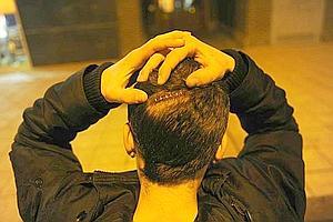Un joven agredido muestra la brecha que tiene en la cabeza tras la agresión en San Martín.
