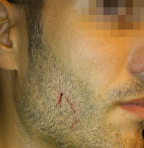 Rostro del agredido por radicales antifascistas el 12 de octubre en Barcelona