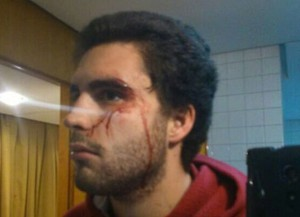 Uno de los estudiantes agredidos