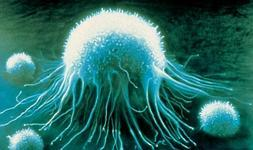 Simulación por ordenador de una célula cancerosa.