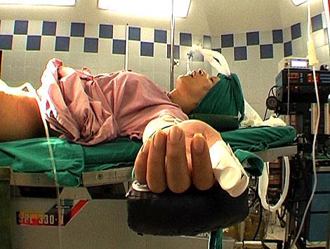 Un paciente entubado antes de una operación de cambio de sexo.