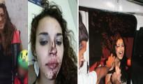 Dos de las jóvenes que sufrieron agresión, la primera violada y la segunda siendo atacada