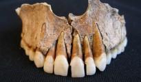 Un fragmento de los incisivos superiores de uno de los esqueletos hallados en el primer cementerio islámico medieval de España, situado en Pamplona, en el que se aprecia la manipulación dentaria intencional de origen probablemente africano y por razones estéticas.