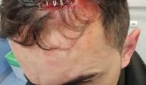 Imagen de uno de los policías heridos hecha pública por Alfredo Perdiguero