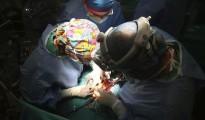 Un cirujano y su equipo durante un trasplante de corazón.