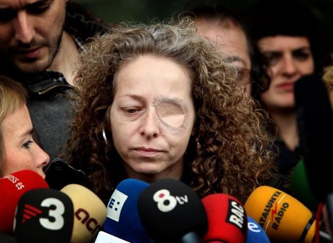 Ester Quintana, de 42 años, la mujer que perdió el ojo izquierdo a consecuencia de un fuerte impacto recibido en una calle de Barcelona durante las protestas registradas con motivo de la huelga general del 14N.