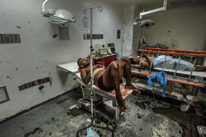 En el Hospital de la Universidad de los Andes no había suficiente agua para lavar la sangre de las mesas de operaciones.