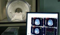 Vista de una sala de escáner del Centro Alzheimer, impulsado por la Fundación Reina Sofía en Madrid.