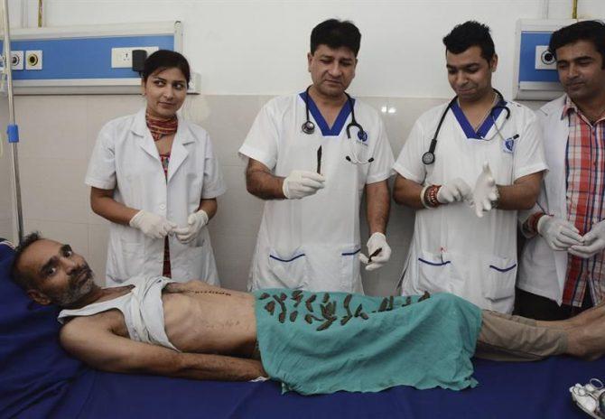 El Dr. Jatinder Malhorta (2i) y miembros de su equipo muestran los 40 navajas recuperadas del estómago de su paciente Surjeet Singh (tumbado en la cama) tras ser operado en el hospital Corporate en Amritsar (India) hoy.