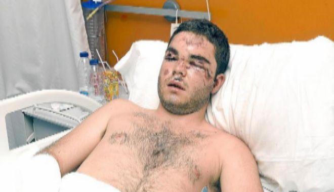 Jake Evans en el hospital tras su 'balconing' en Magaluf.
