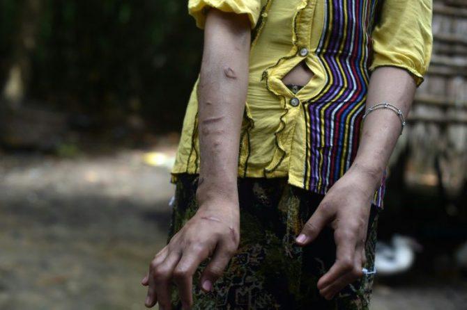 San Kay Khine, una adolescente de 17 años, muestra las cicatrices que tiene en sus brazos el 20 de septiembre de 2016 en la localidad birmana de Baw Lone Kwin