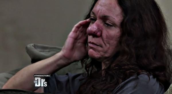 Pamela experimentó un acné profundo en su pubertad. Pero nunca creyó que su vida cambiaría por completo