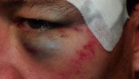 Heridas en el ojo del policía.