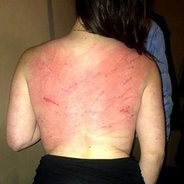 Una de las víctimas de los brutales castigos