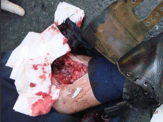 Policía francés herido en los disturbios que se viven estos días en París.