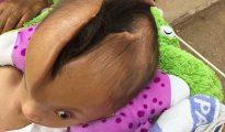 La grieta en la cabeza de Pheaktra Pov, de seis años, se sigue profundizando