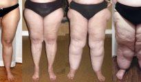 Entre otras consecuencias están la hinchazón, la aparición de celulitis y la fatiga muscular