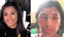 Resham Khan, de 21 años, quería ser modelo y fue agredida en Londres (foto ABC)