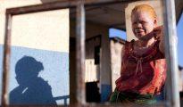 Imagen de archivo de una mujer de raza negra y albina