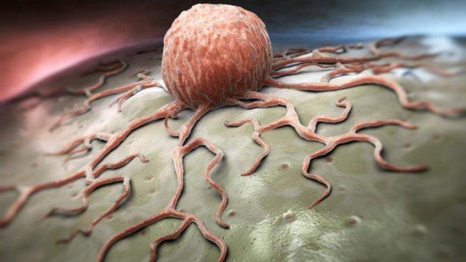 Una célula cancerígena vista al detalle