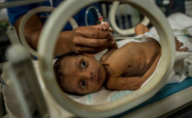 A los 18 días de nacer, Esteban Granadillo fue llevado al Hospital Universitario de Pediatría Agustín Zubillaga, en Barquisimeto, por desnutrición