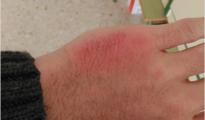 Imagen que el docente publicó de su lesión en su cuenta de Facebook