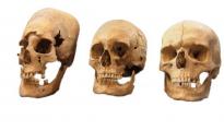 Cráneos con distinto estado de alteración. Se vendaba la cabeza de las niñas para cambiar su forma, como señal de alto nivel socioeconómico - State Collection for Anthropology and Palaeoanatomy Munich