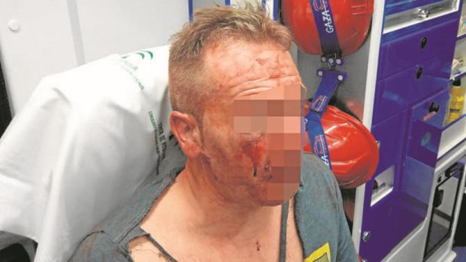 El policía agredido en Córdoba (ABC)