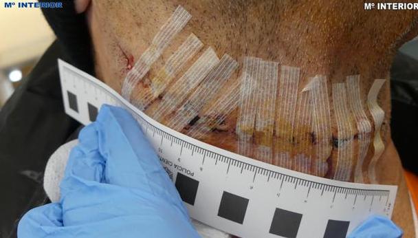 Imagen de las heridas provocadas al trabajador / Fotografía: Ministerio del Interior