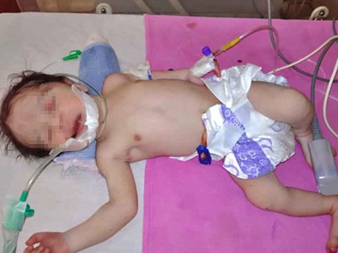 Fotografía del bebé que nació mientras su madre se suicidaba