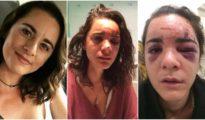 A la izda, una foto publicada en su cuenta de Instagram; en las otras, las imagenes divulgadas en Facebook por Andrea tras la brutal agresión
