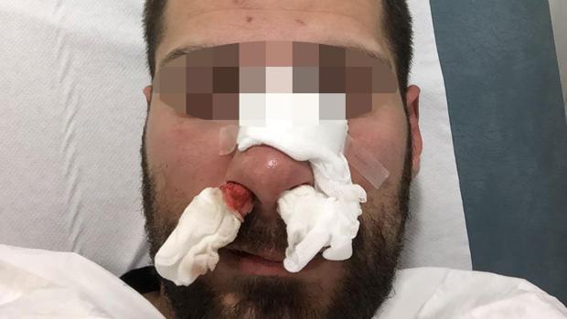 Imagen del policía tras la paliza - ABC